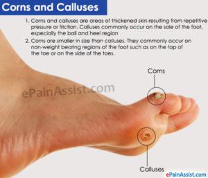 Corns and Calluses.