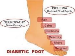 diabetic steel toe boots